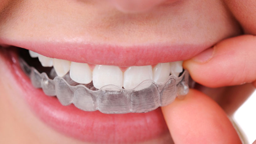 Pros and Cons of Invisalign Treatment for Adults & Teens